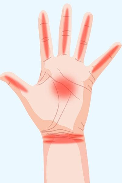 Figyeld meg mi az a 7 dolog, amit a kezed próbál elárulni az egészségedről