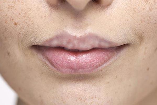 Ha hiányzik ez az 5 tápanyag a szervezetedből, az az arcodon is meglátszik