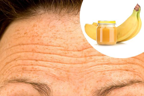 Ezzel a 11 tippel megoldódhatnak az arcproblémáid